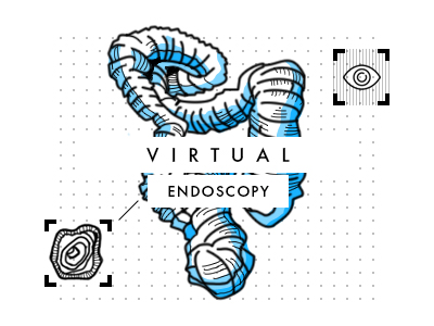 Virtual endoscopy