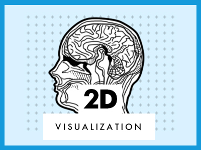 2D visualization