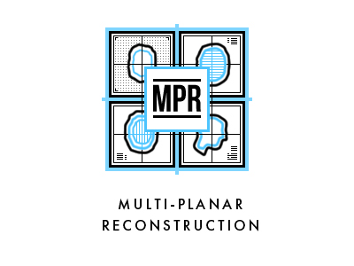 Multiplanar reconstruction